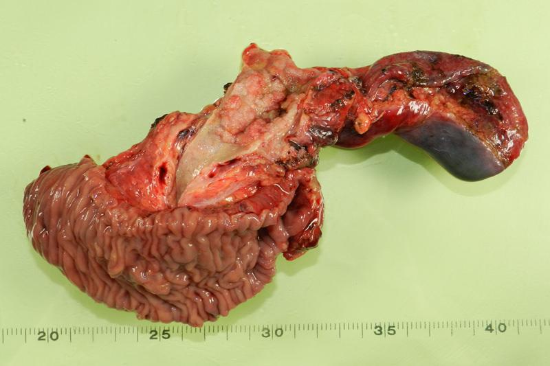 十二指腸癌の手術について3つ質問があります - 主人(62歳)に十二指腸の球部  - Yahoo!知恵袋