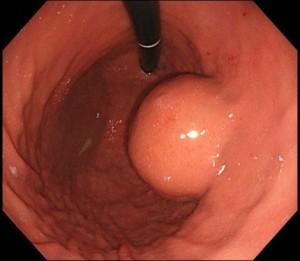 胃内発育型GIST