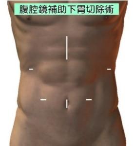 胃がんに対する腹腔鏡手術1