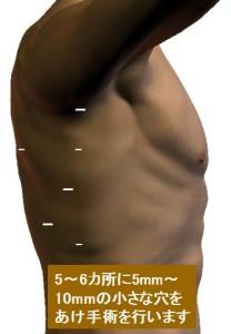 胸腔鏡手術
