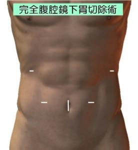 胃がんに対する腹腔鏡手術2